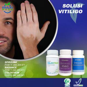 Solusi Vitiligo (Kulit Warna-Warni)